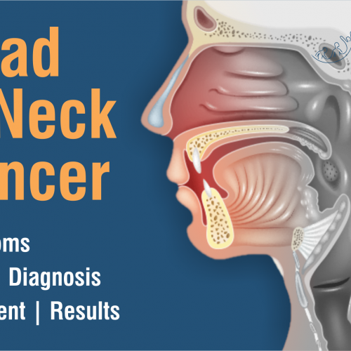 Head and Neck Cancer: Where to seek help