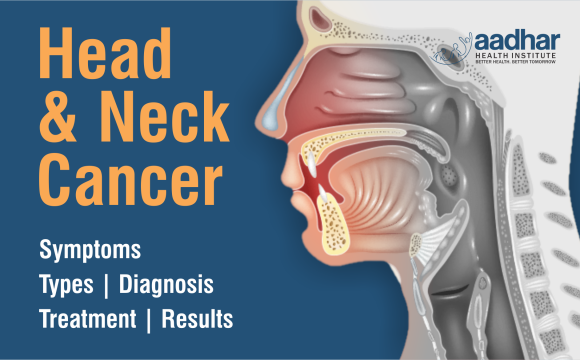 Head and Neck Cancer: Where to seek help