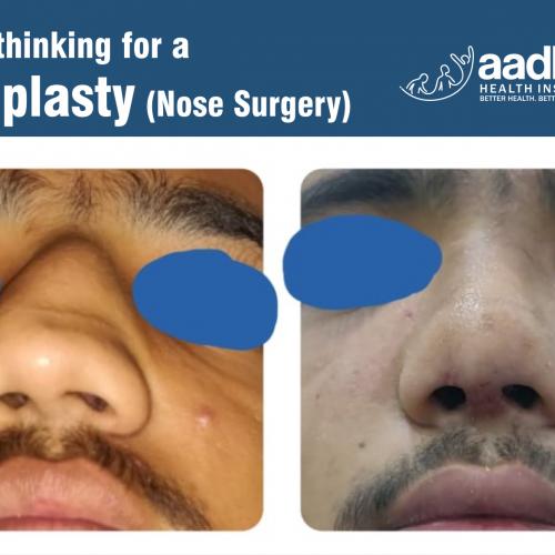 Rhinoplasty : Nose Surgery