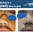 Rhinoplasty : Nose Surgery