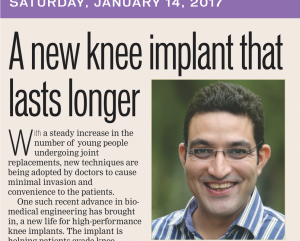 Knee Implant that lasts Longer